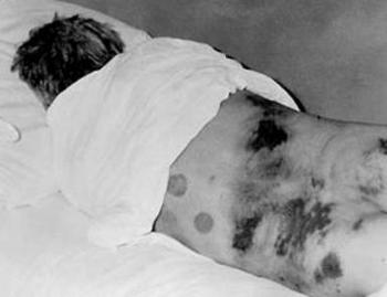 Rash of Crimean-Congo hemorrhagic fever showing petechiae, purpura, and ecchymoses..jpg